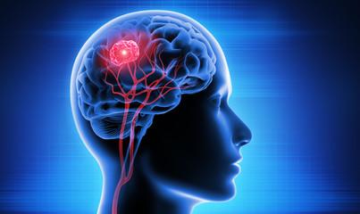 Brain Cancer Cancer Exercise Training Institute